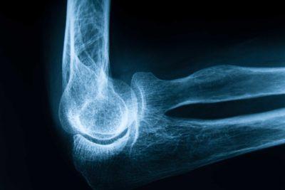 acqua osteoporosi