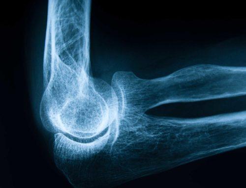 L'acqua più adatta per chi soffre di osteoporosi